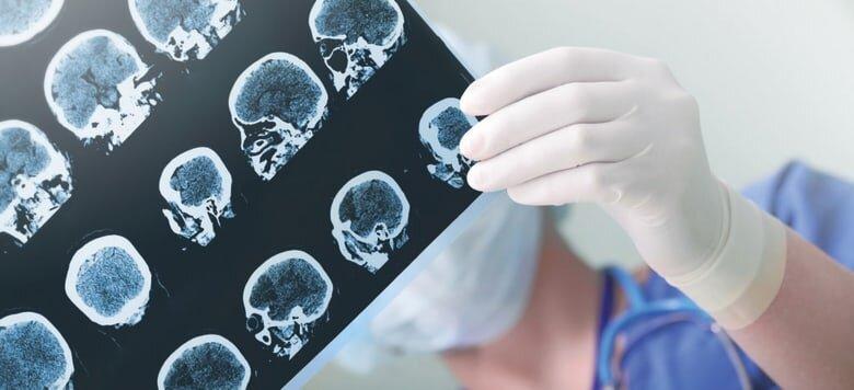 """Så drabbar pandemin forskningen kring Alzheimer: """"Viruset är en katastrof, ett enda elände!"""""""